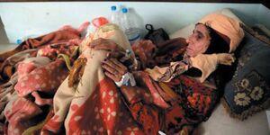 استان الحدیده یمن یک سال پس از توافق «استکهلم» / ۷۰۰ شهید و زخمی و ادامه محاصره ۷ هزار غیرنظامی + نقشه میدانی و عکس