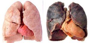 عفونت ریه و انسداد ریه چه تفاوتی با هم دارند؟