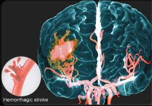 کشف روش جدیدی برای درمان سکته مغزی