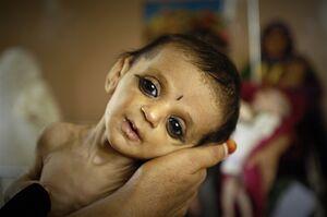 محرومیت ۱۴ میلیون کودک آمریکایی از غذا!