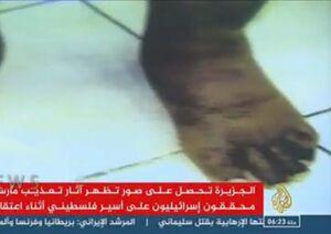 فیلم/ آثار ضرب و جرح روی بدن یک اسیر فلسطینی