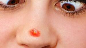 جوش زدن هر ناحیه از صورت نشانه چه بیماری است؟