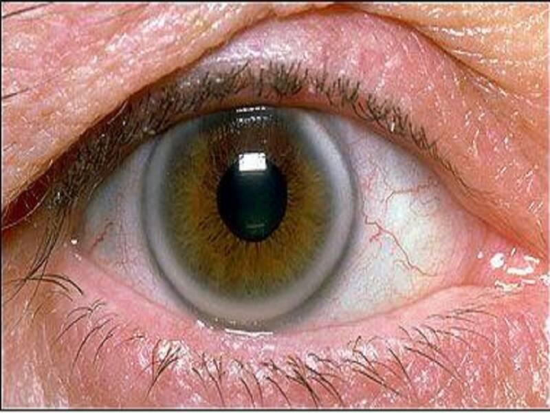 قرنیه چشمی
