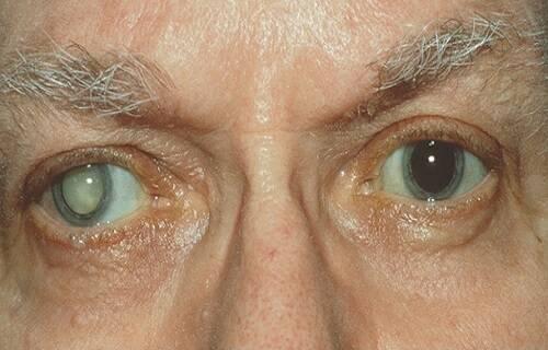 عارضه چشمی
