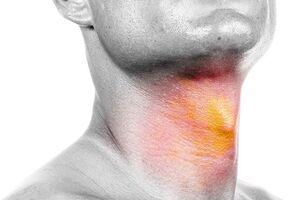 عوامل موثر در بروز تومورهای سر و گردن