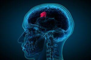 درمان تومورهای مغزی با کمک سلولهای کشنده طبیعی