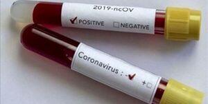 کیت تشخیص ویروس کرونا تولید بومی شد/ توانایی ساخت ۱۵۰ تا ۲۰۰ کیت تشخیص کرونا در روز