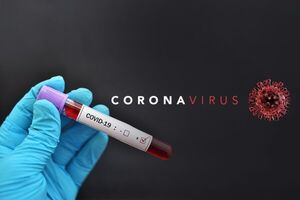 بیکاری ۲۵ میلیون نفر در جهان به دلیل شیوع ویروس کرونا