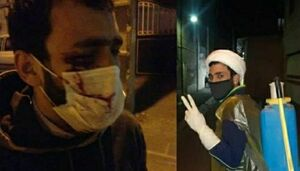 وضعیت جسمانی طلبه جهادگری که توسط یک مست مضروب شد