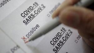 تست کاغذی تشخیص کرونا ساخته شد