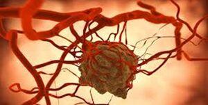 کاهش ابتلا به چندین سرطان کشنده با مصرف یک قرص
