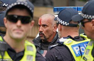 عکس/ درگیری پلیس با مخالفان قرنطینه