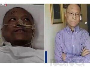 سفید شدن پزشک کرونایی که پوستش سیاه شده بود!