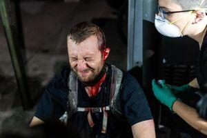 عکس/ پلیس خون معترضان را ریخت