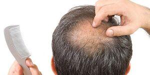 ریزش شدید مو از علائم عفونت کرونا/ تغییر روزانه علائم بالینی بیماری