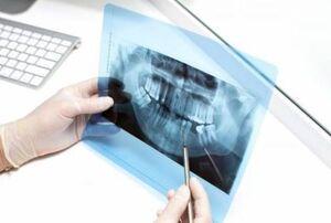 بیماریهایی که داخل دهان علامت دارند !!
