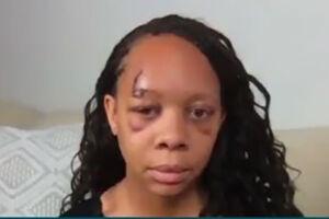 فیلم/ زنی که پلیس آمریکا بیناییاش را گرفت!