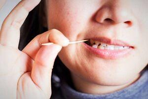 کارهای روزمرهای که دندانهایتان را خراب میکند