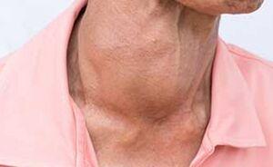 اختلالات تیروئید خطر ابتلا به کرونا را افزایش نمیدهد