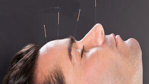 معجزه طب سوزنی در درمان میگرن