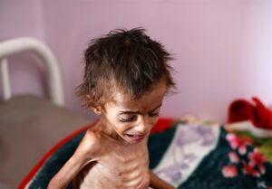 هشدار سازمان ملل متحد درباره آغاز موج قحطی و گرسنگی در یمن