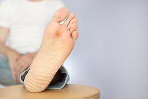 زخم پای دیابتی؛ علل، نشانهها و راههای درمان آن