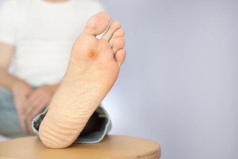 اینفوگرافیک/ مراقبت از زخم پای دیابتی
