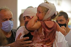 کودکان مصدوم انفجار بیروت