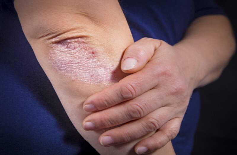 تشخیص و راههای درمان بیماری آرتریت پسوریاتیک