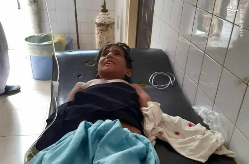 چرا کودک ایرانی طعمه تمساح باید برای درمان به پاکستان اعزام شود؟