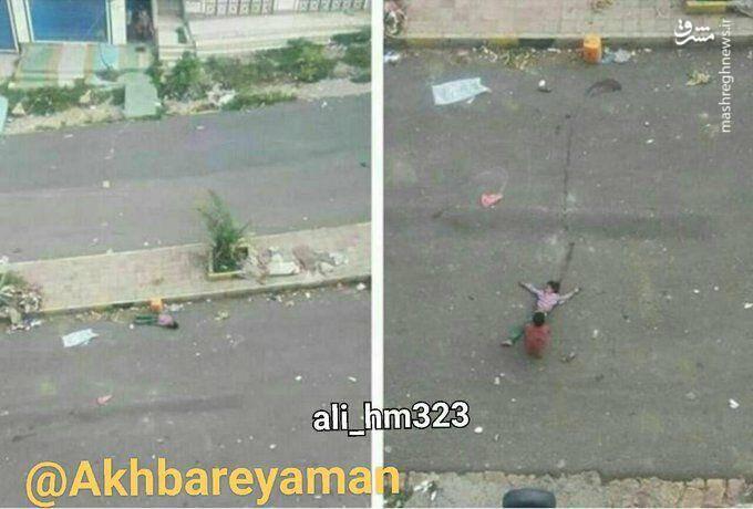 2888470 - شهادت دختر خردسال یمنی به جرم برداشتن آب+عکس