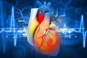 مهمترین علل ابتلا به بیماریهای «قلبی» - کراپشده