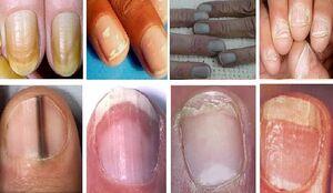 نشانههای هشداردهنده روی ناخنها که از سرطان خبر میدهند