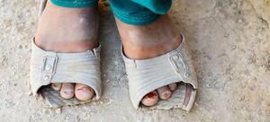 سازمان ملل خواستار همبستگی با فقرای جهان شد