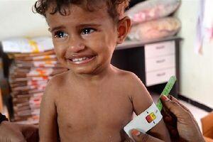 افزایش نگرانکننده سوء تغذیه حاد در میان کودکان یمنی