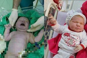 تولد نوزاد ۶ کیلویی در ایران +عکس