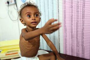مصائب کودکان یمن و فلسطین در سایه فراموشی جهان +عکس