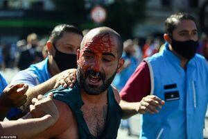 عکس/ درگیری خونین در مراسم تشییع مارادونا