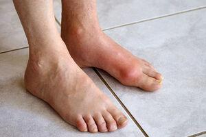 نخستین علامت بیماری نقرس چیست؟
