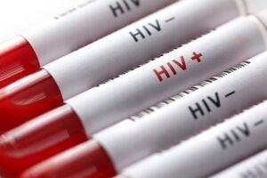 برای انجام «تست رایگان HIV» به کجا مراجعه کنیم؟