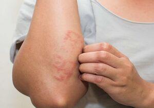 مشکلات پوست و مو ناشی از کرونا چه ویژگی دارند؟