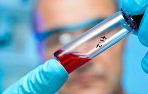 سلول های بنیادی بند ناف کرونا را درمان می کند