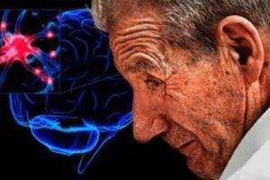 افزایش خطر ابتلا به پارکینسون در بیماران اسکیزوفرنی