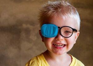 تنبلی چشم در کودکان از چه زمانی قابل تشخیص است؟