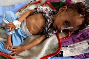 ۴۰۰ هزار کودک یمنی به دلیل سوءتغذیه با مرگ فاصلهای ندارند
