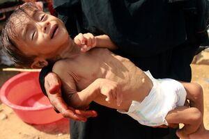 یمن،خواستار جرمانگاری جنایتهای سعودی شد - کراپشده