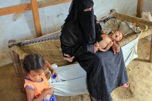 یک میلیون زن باردار یمنی در خطر سوءتغذیه شدید قرار دارند