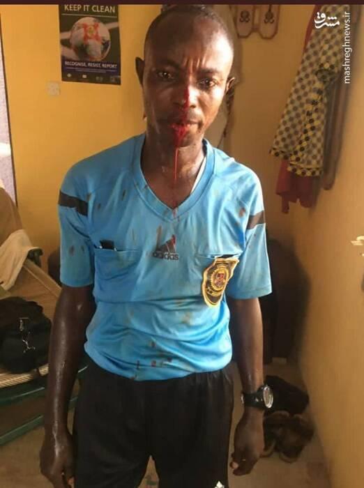 ضرب و شتم داور در لیگ غنا +عکس