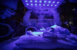 عکس/ نوزاد مبتلا به کرونا در بیمارستان