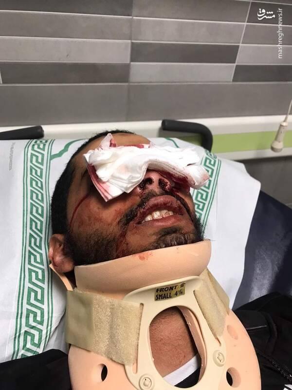 آسیب زدن عمدی صهیونیستها به چشم فلسطینیها+ عکس